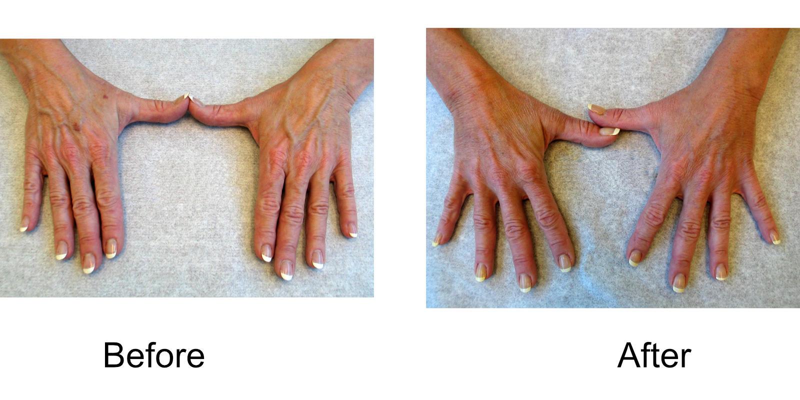 hand-veins-comparison-01