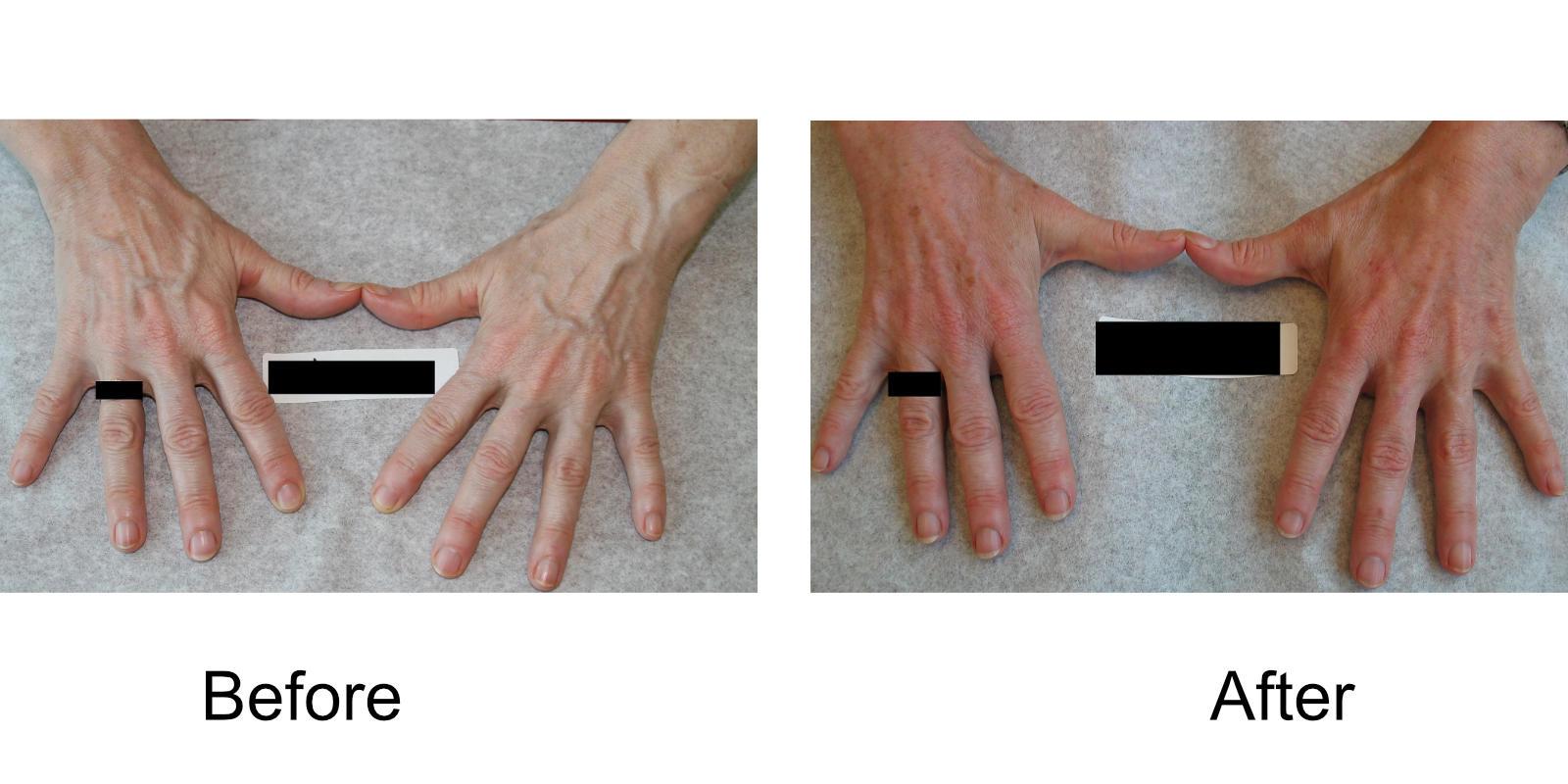 hand-veins-comparison-02