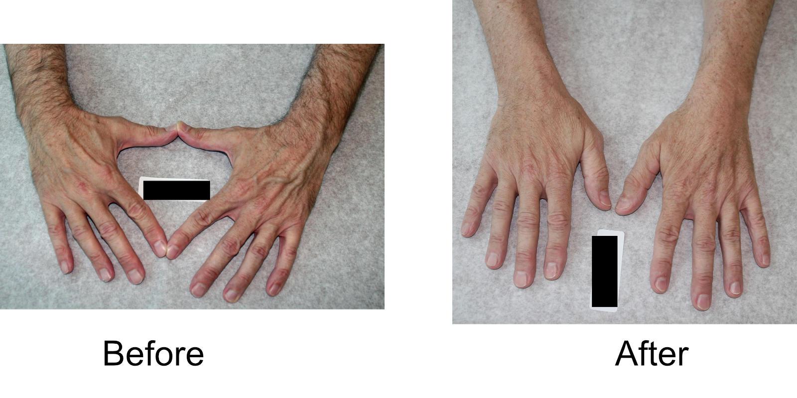 hand-veins-comparison-03
