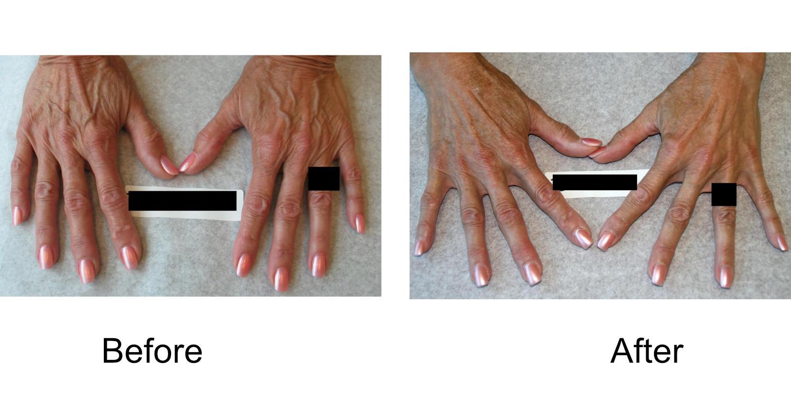 hand-veins-comparison-04