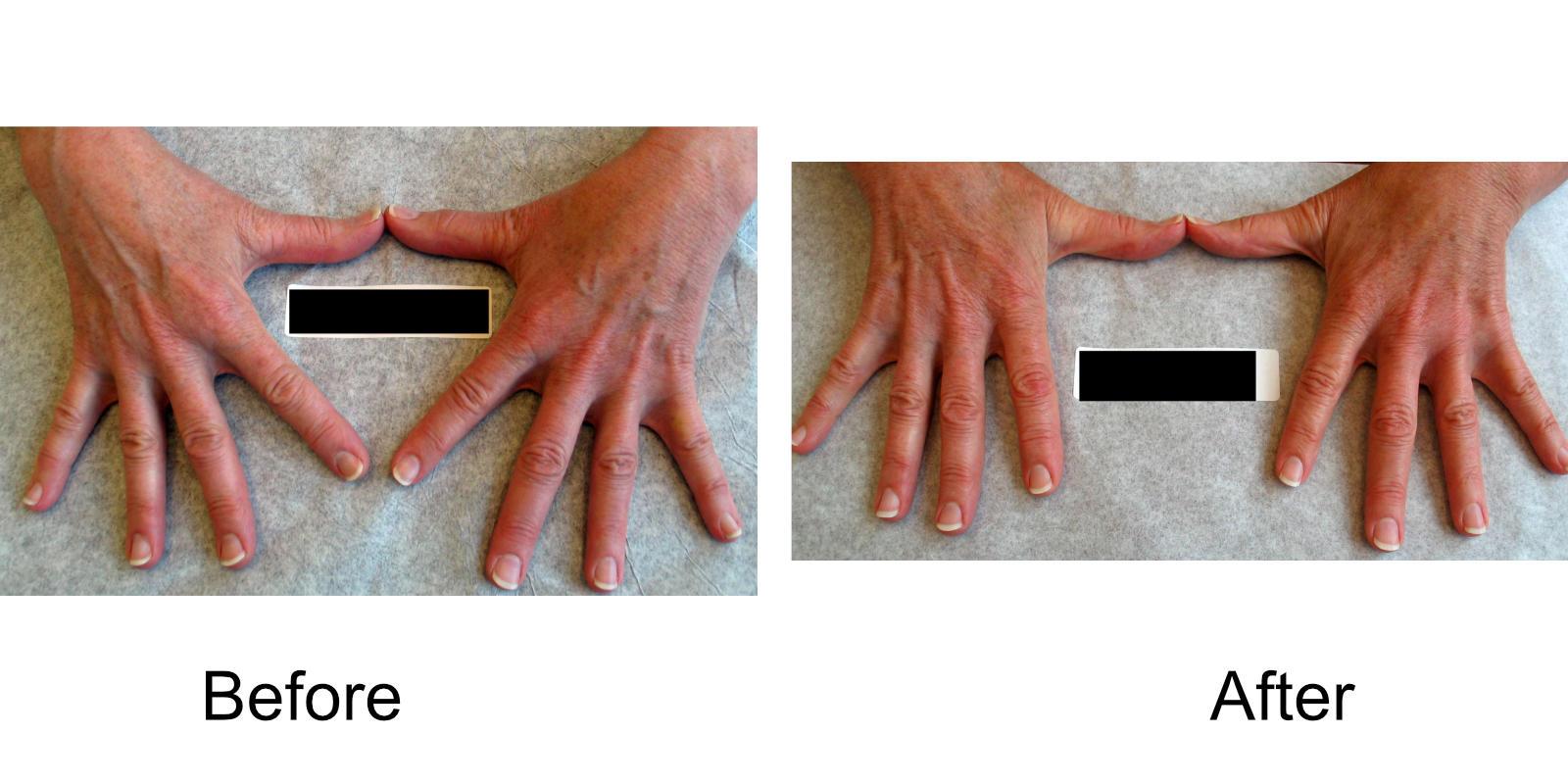 hand-veins-comparison-05