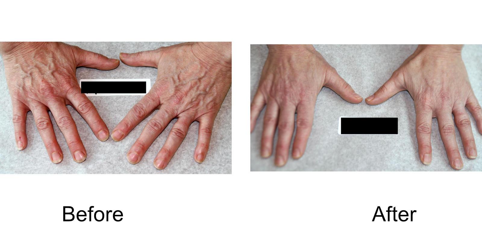 hand-veins-comparison-06