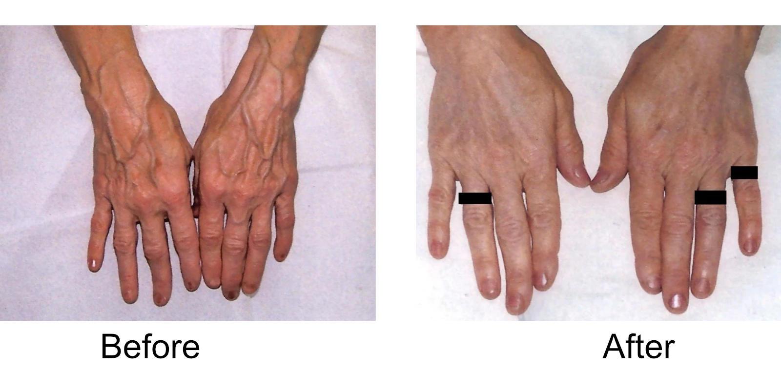 hand-veins-comparison-07