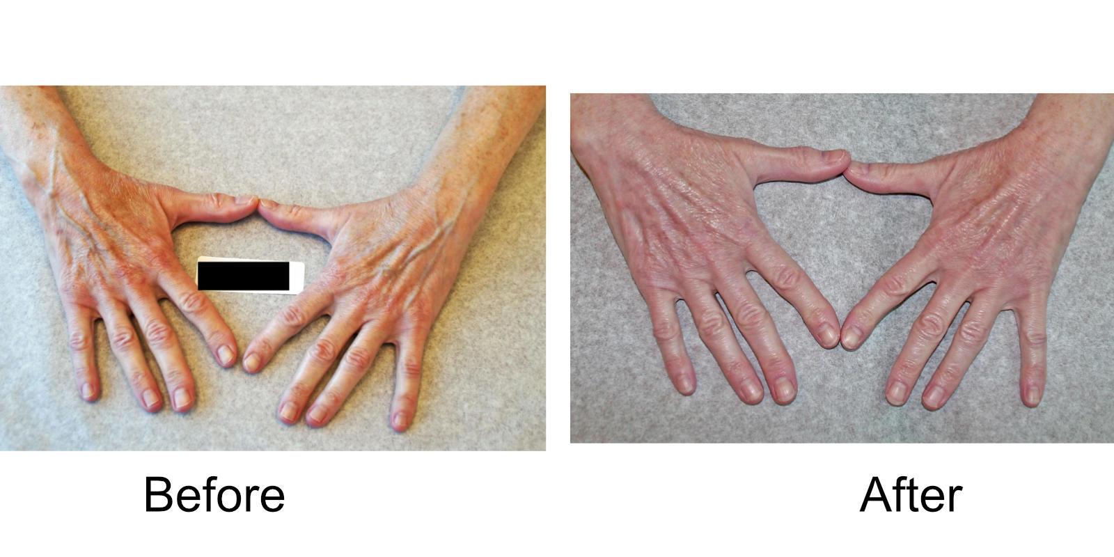 hand-veins-comparison-08
