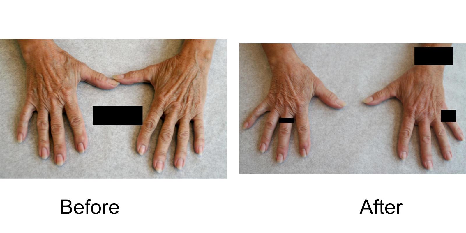 hand-veins-comparison-09