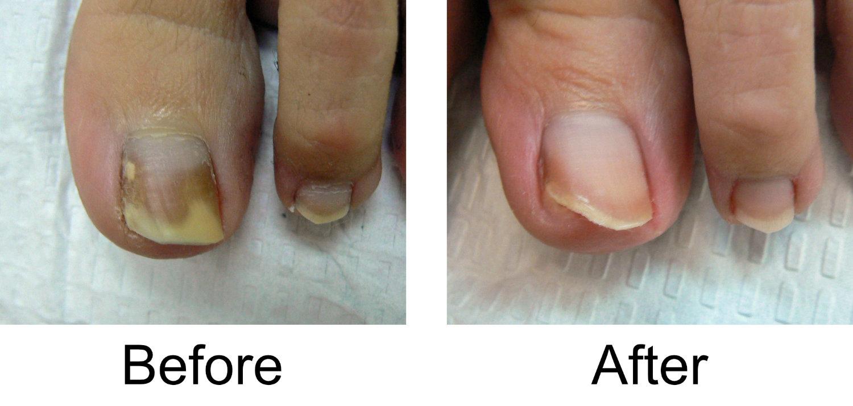 toenail-comparison-1