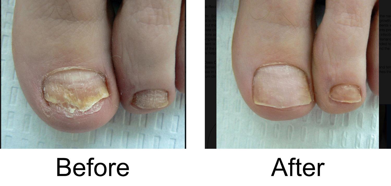toenail-comparison-2