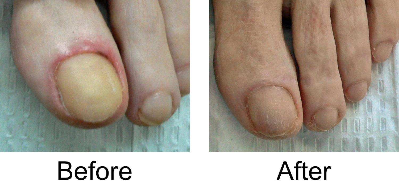 toenail-comparison-3