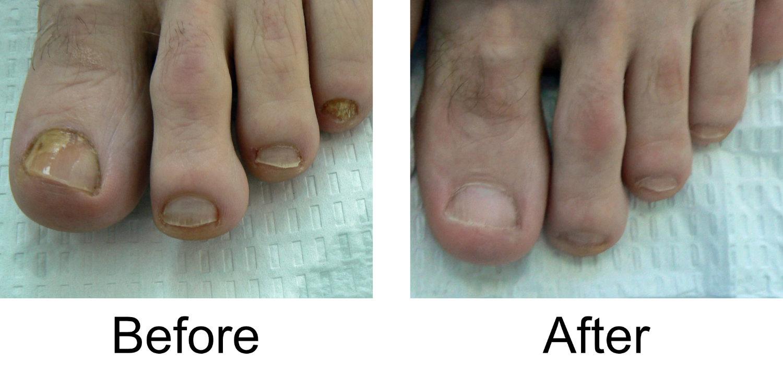 toenail-comparison-4