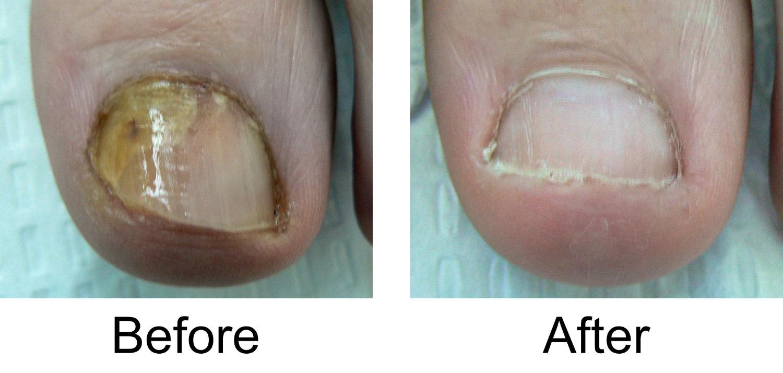 toenail-comparison-5