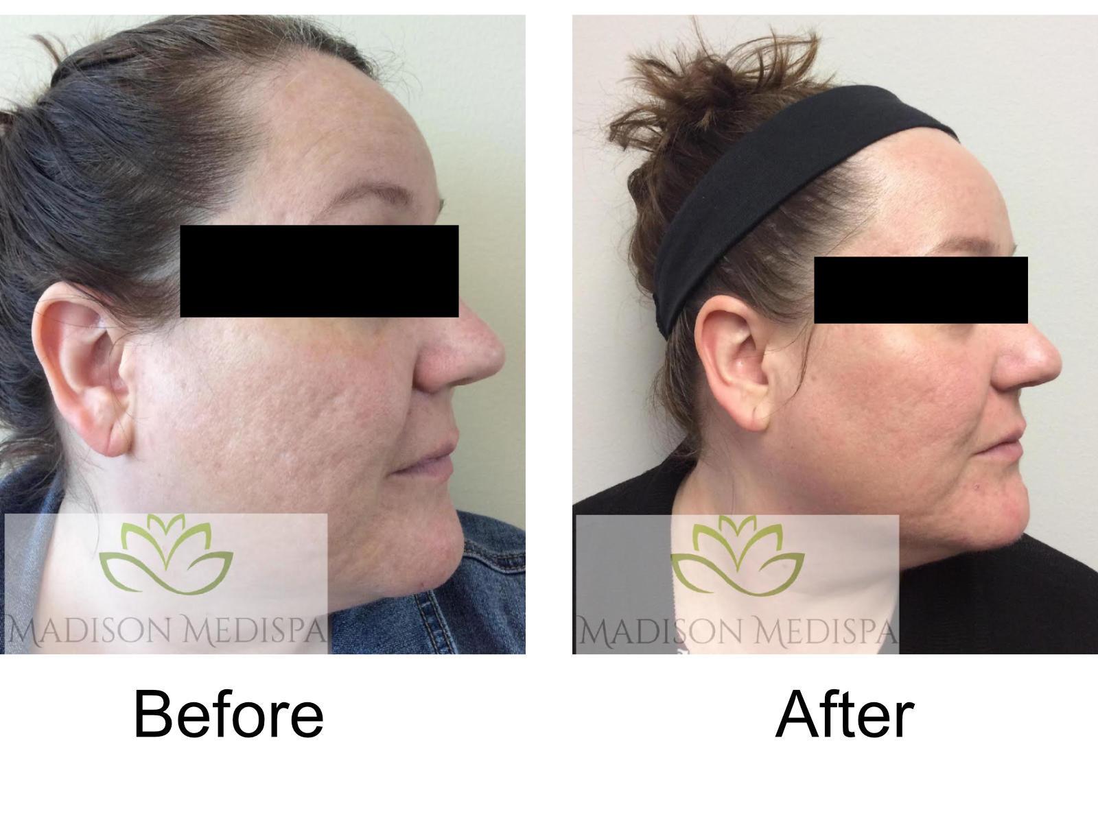b4a-acne-scar-01-NEW