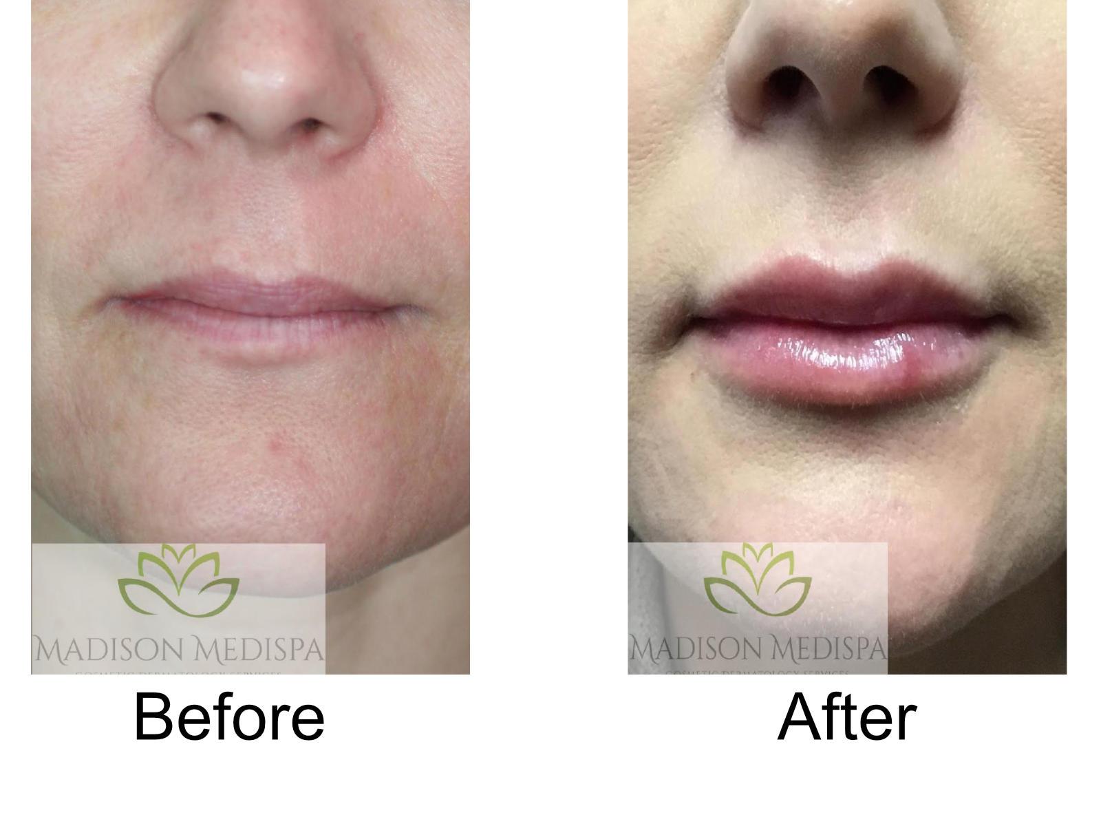 b4a-fillers-lips-02