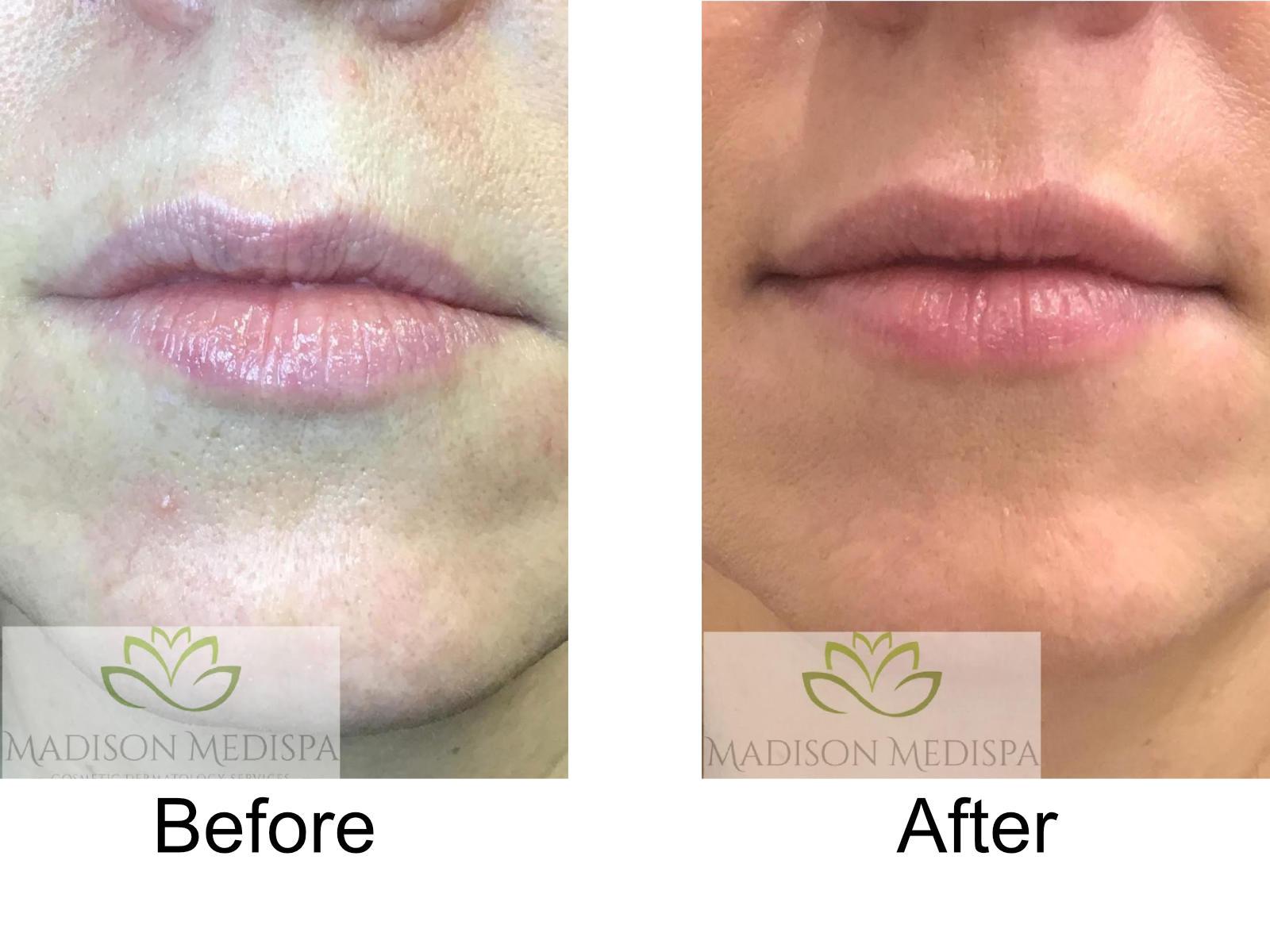 b4a-fillers-lips-04