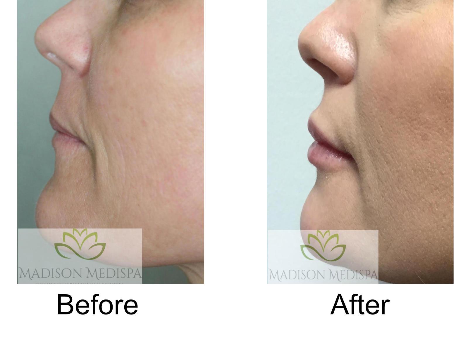b4a-fillers-lips-06