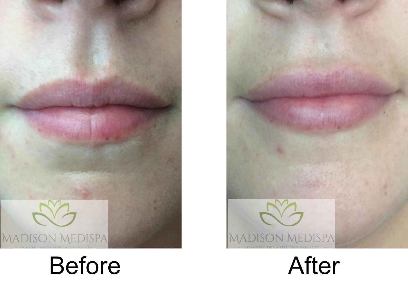 b4a-fillers-lips-07