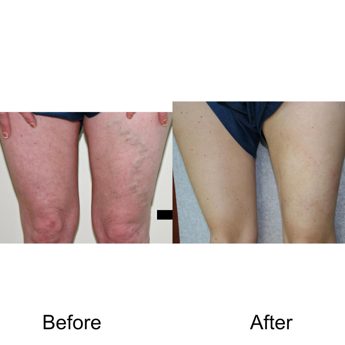 varicose-veins-comparison-06