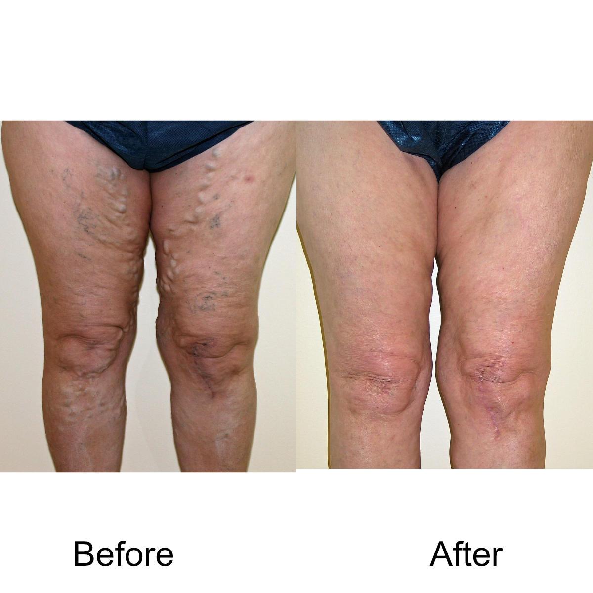 varicose-veins-comparison-07