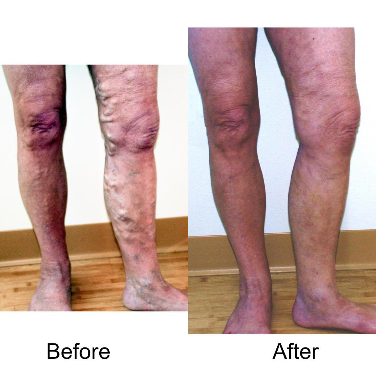 varicose-veins-comparison-11