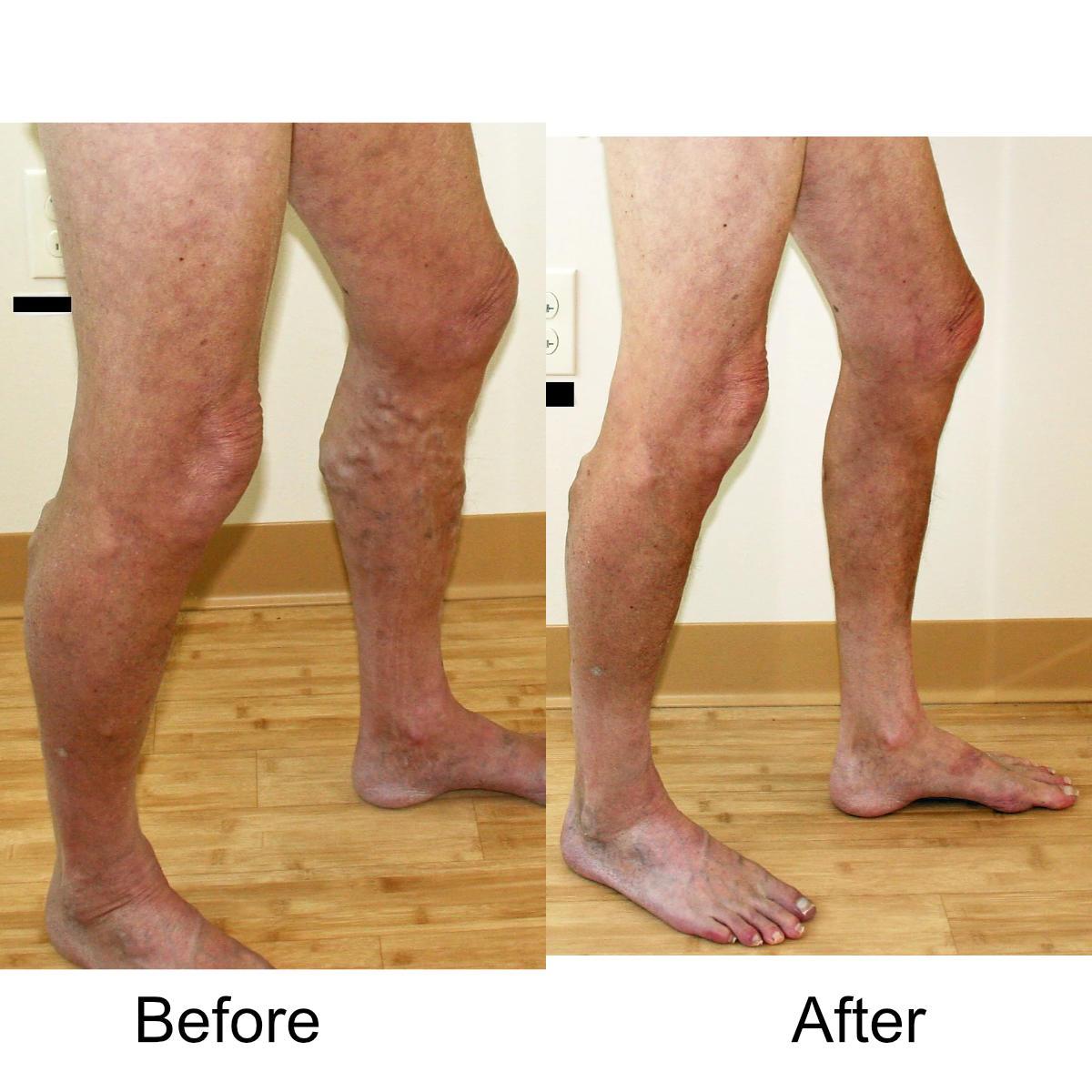 varicose-veins-comparison-12