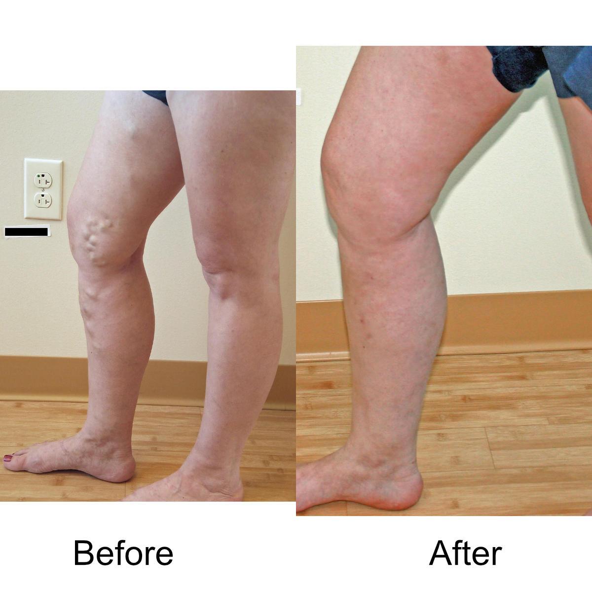 varicose-veins-comparison-13