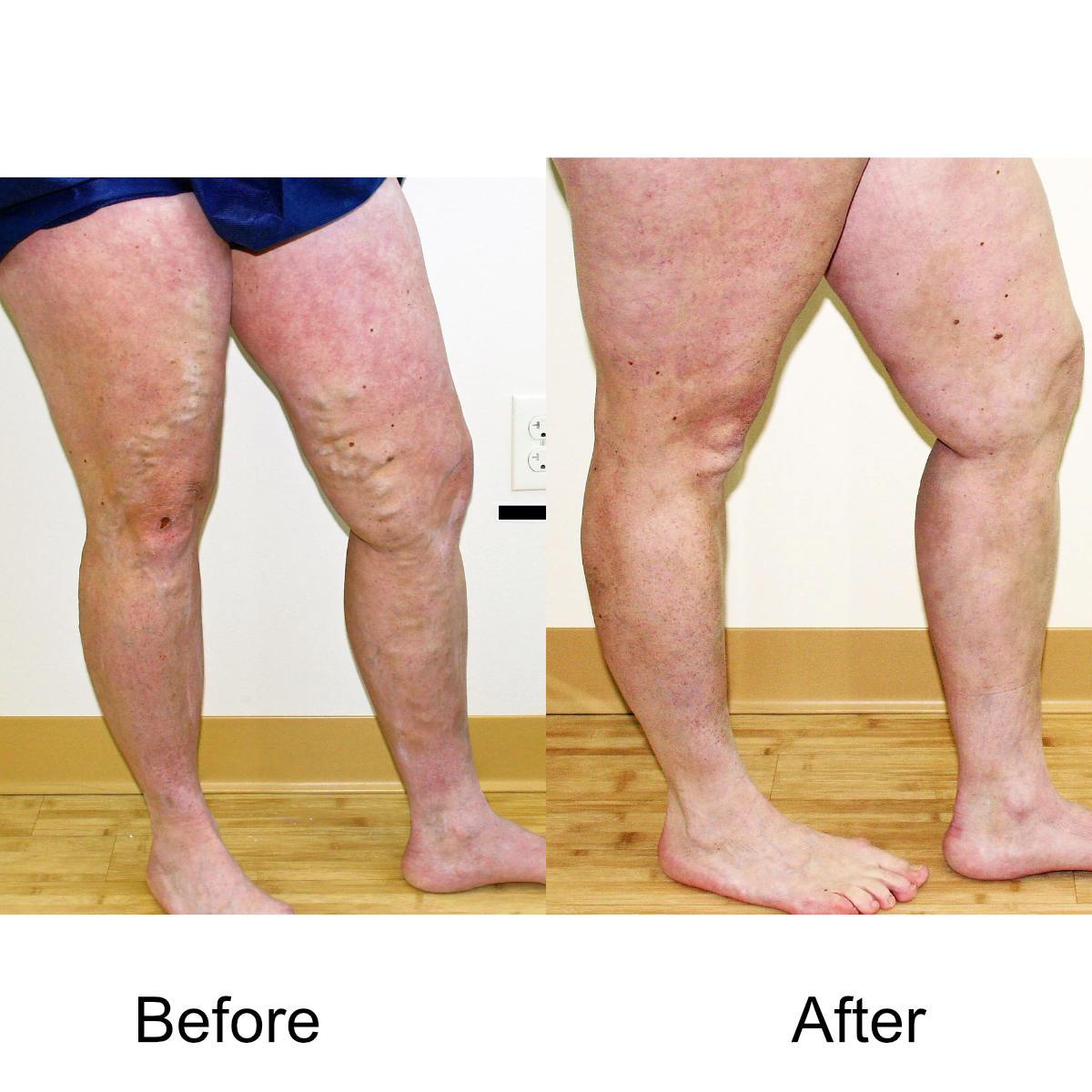 varicose-veins-comparison-14