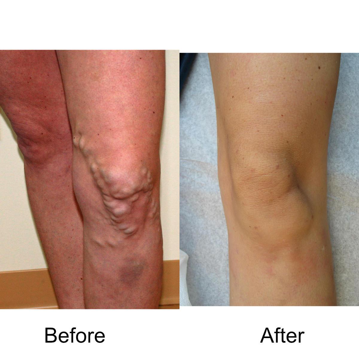 varicose-veins-comparison-15