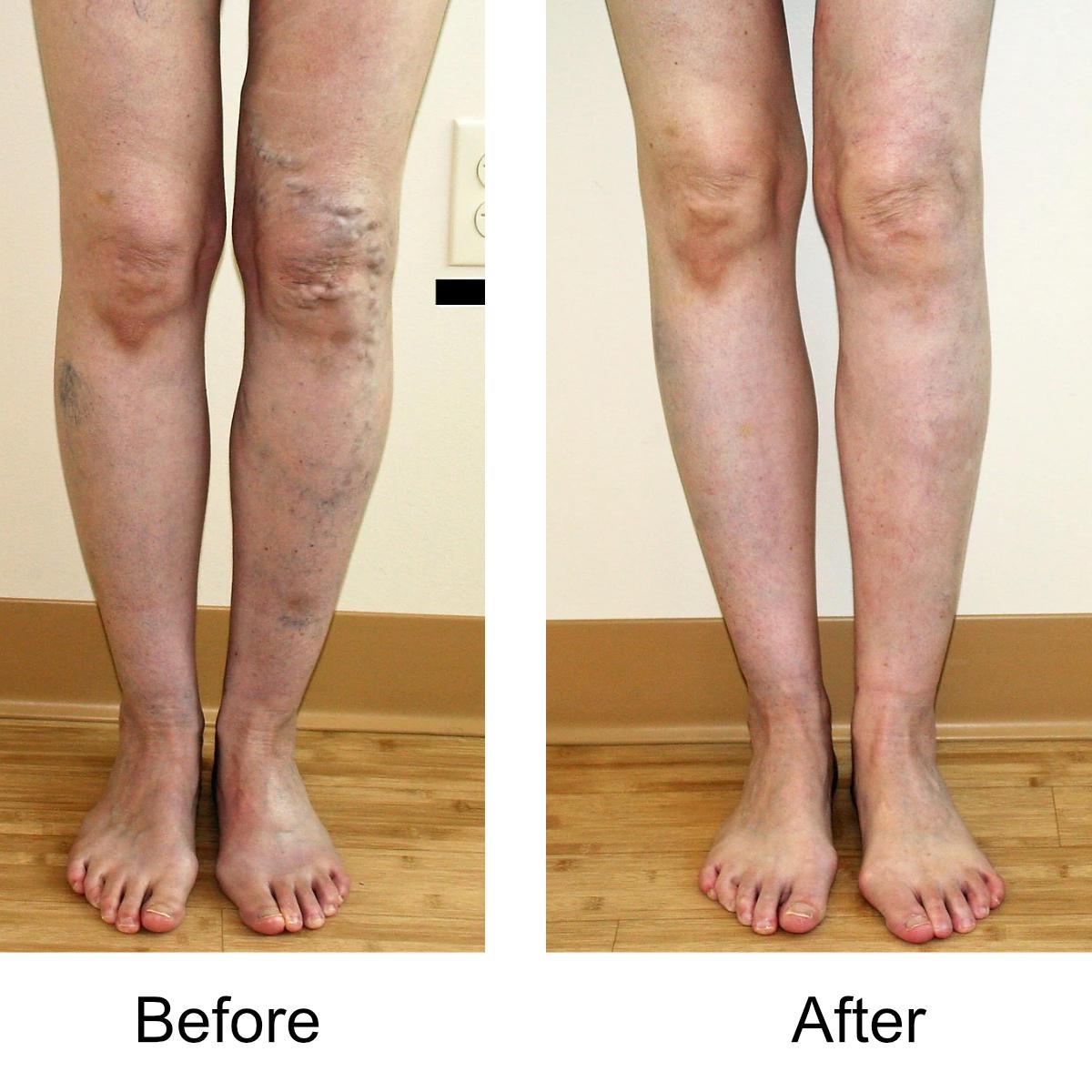 varicose-veins-comparison-16