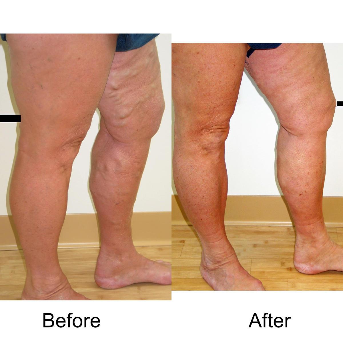 varicose-veins-comparison-17