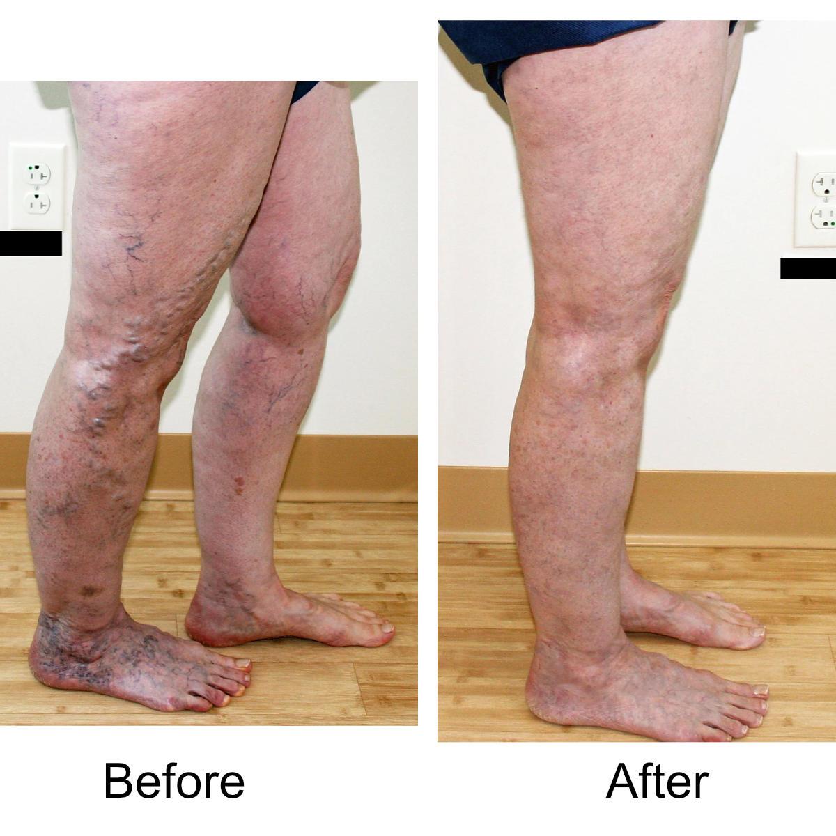 varicose-veins-comparison-18
