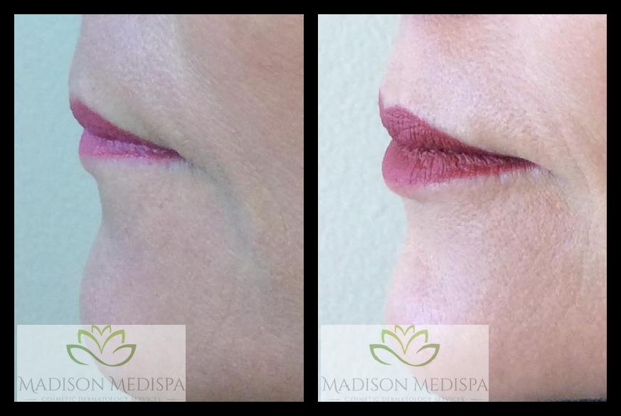 lips_face-procedures (10)