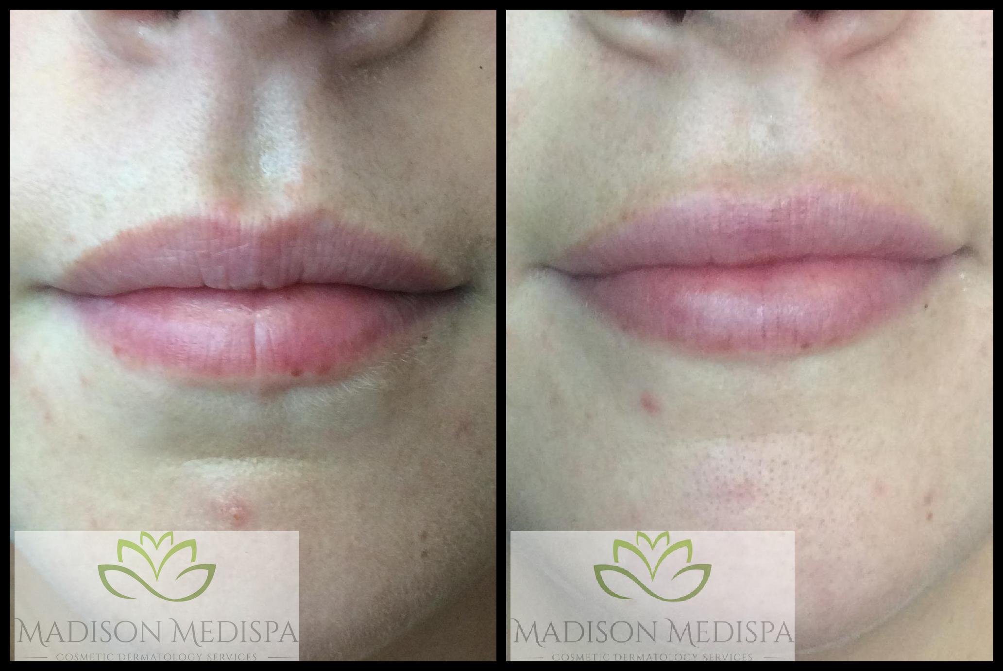 lips_face-procedures (11)