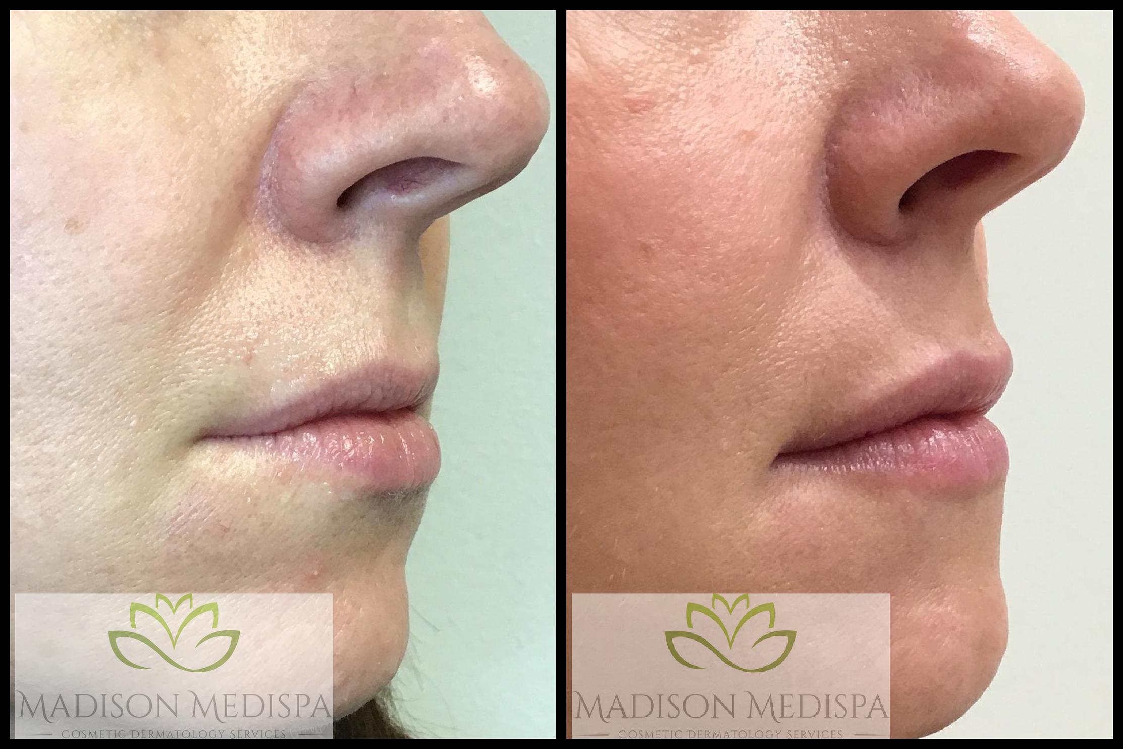 lips_face-procedures (3)