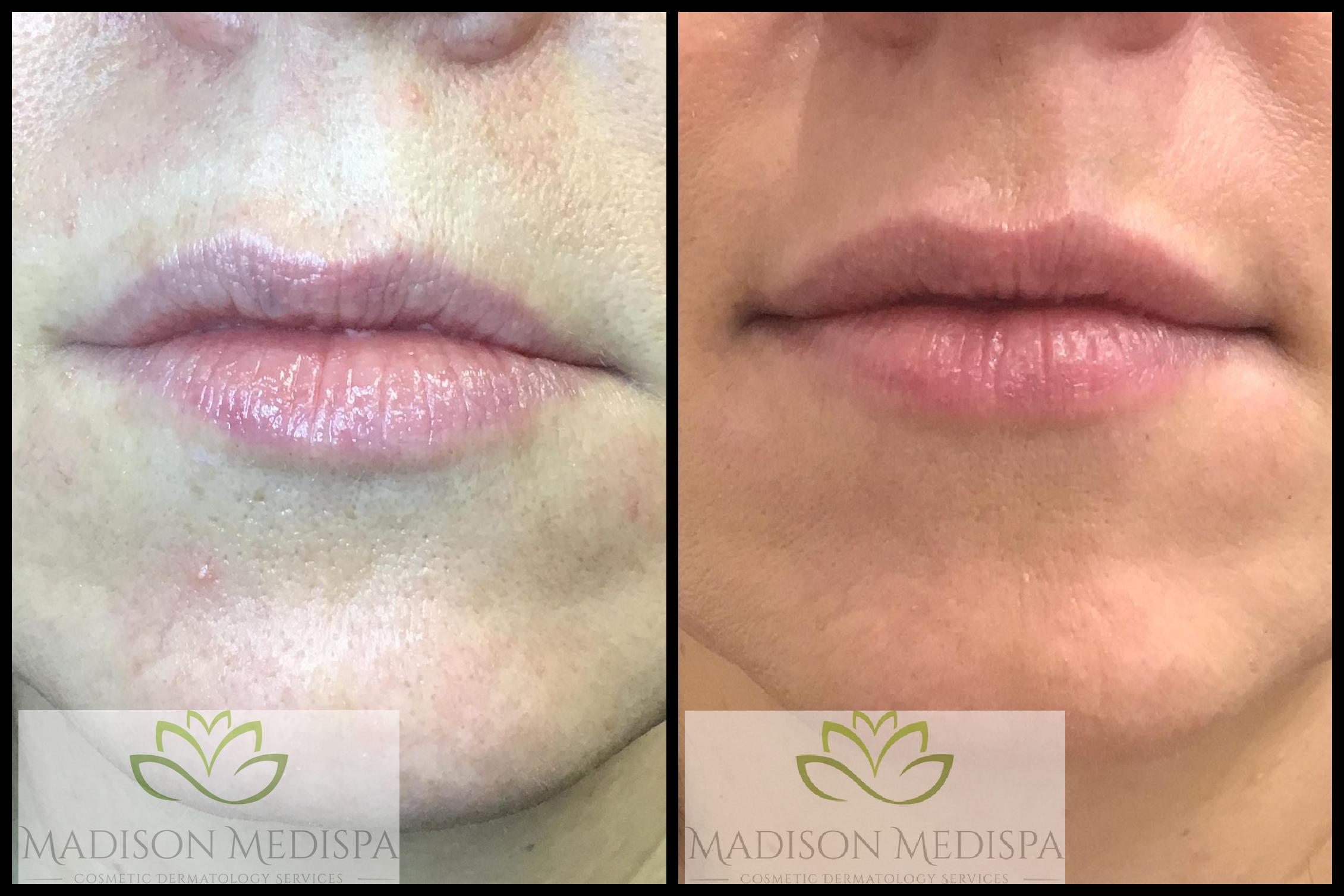 lips_face-procedures (4)