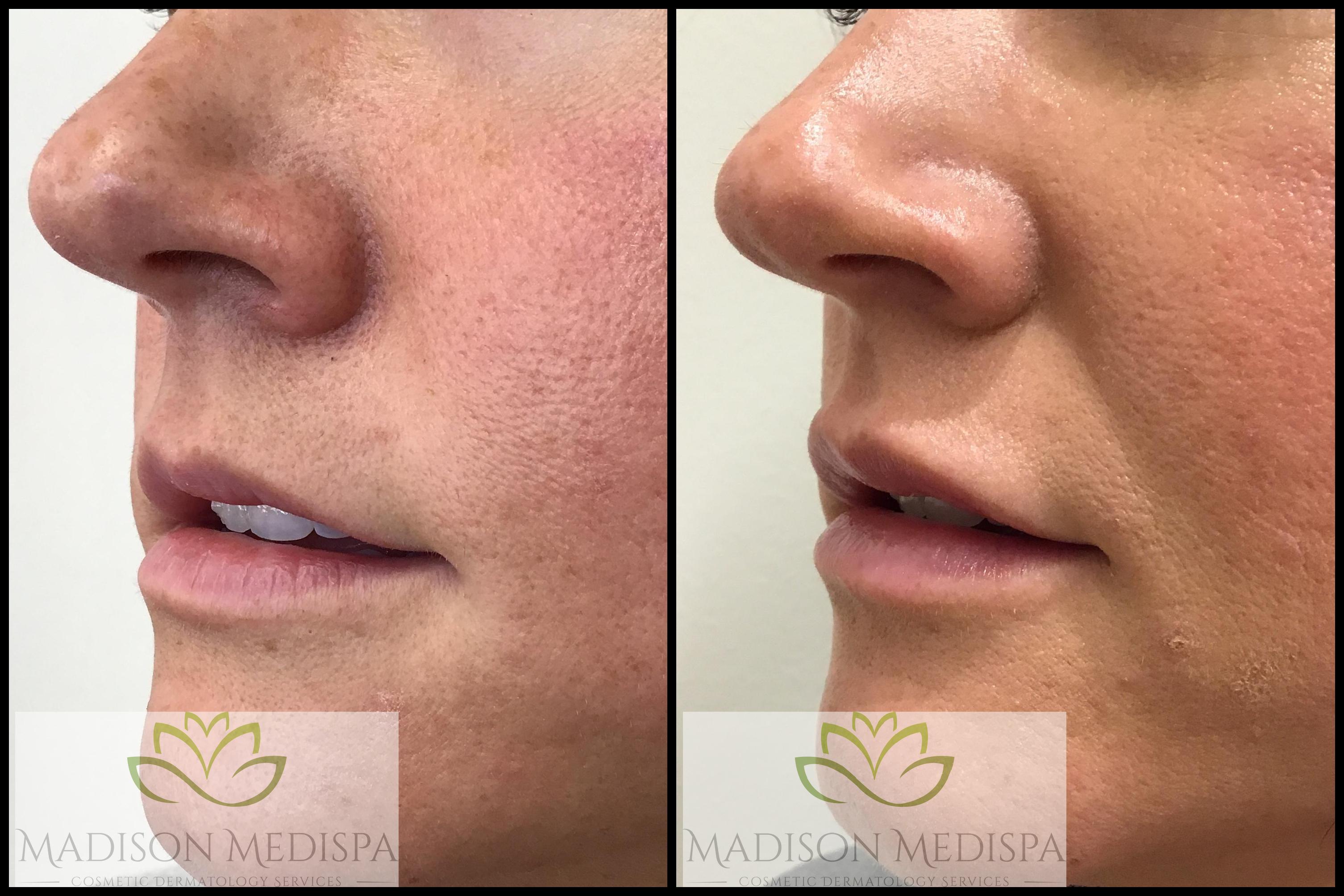 lips_face-procedures (6)