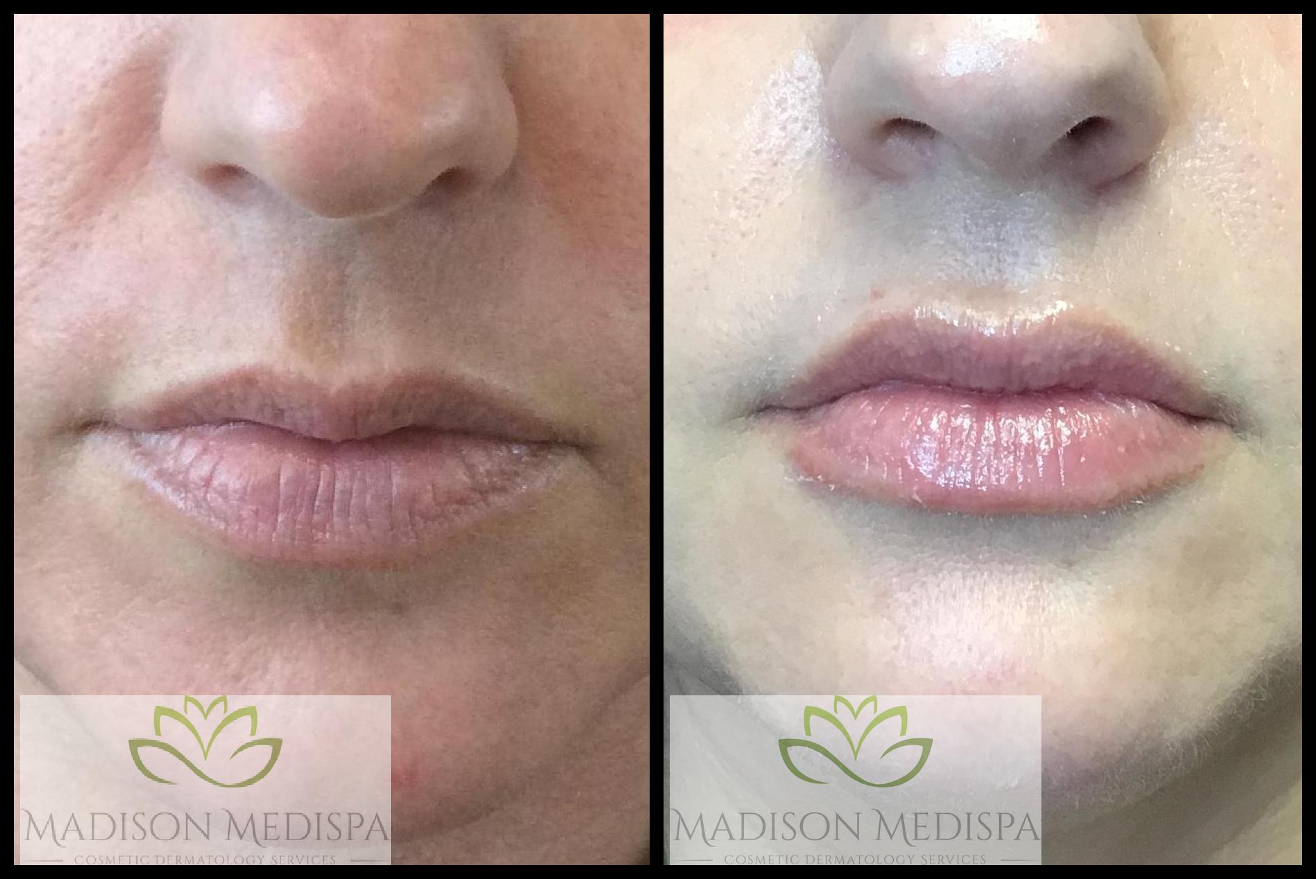 lips_face-procedures (7)