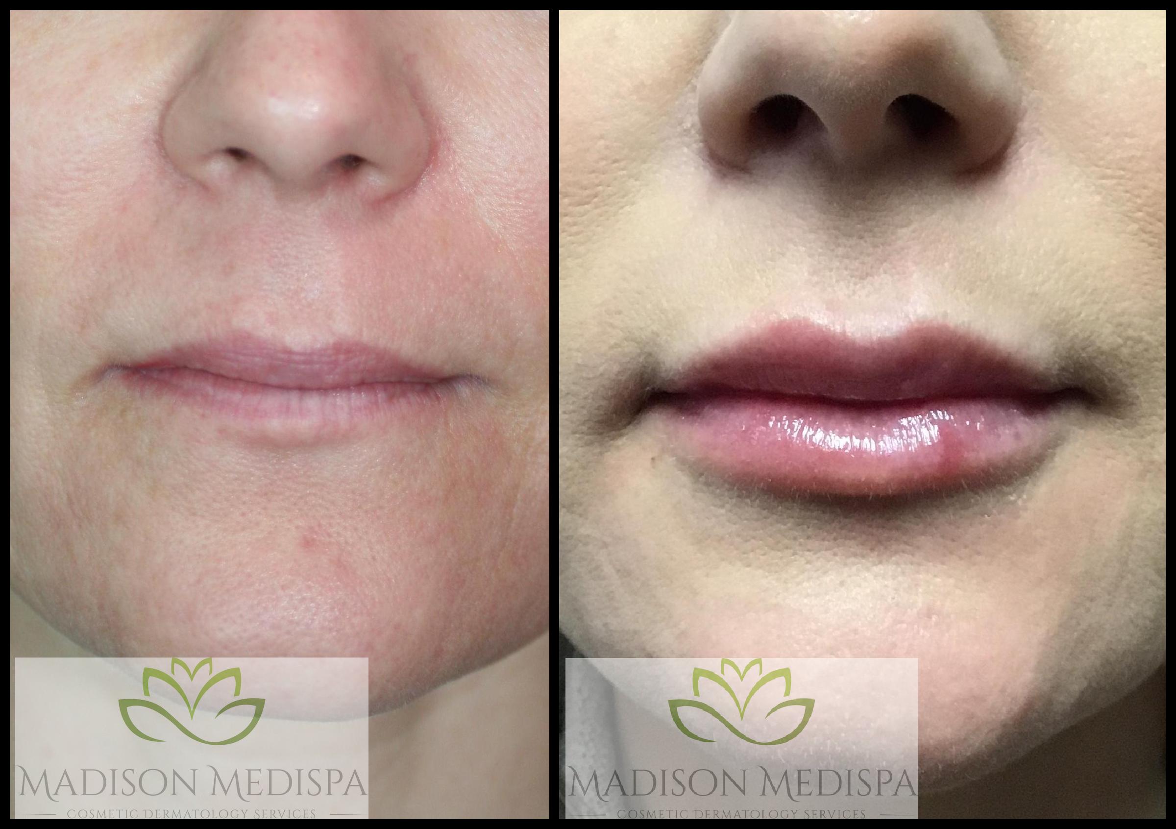 lips_face-procedures (8)