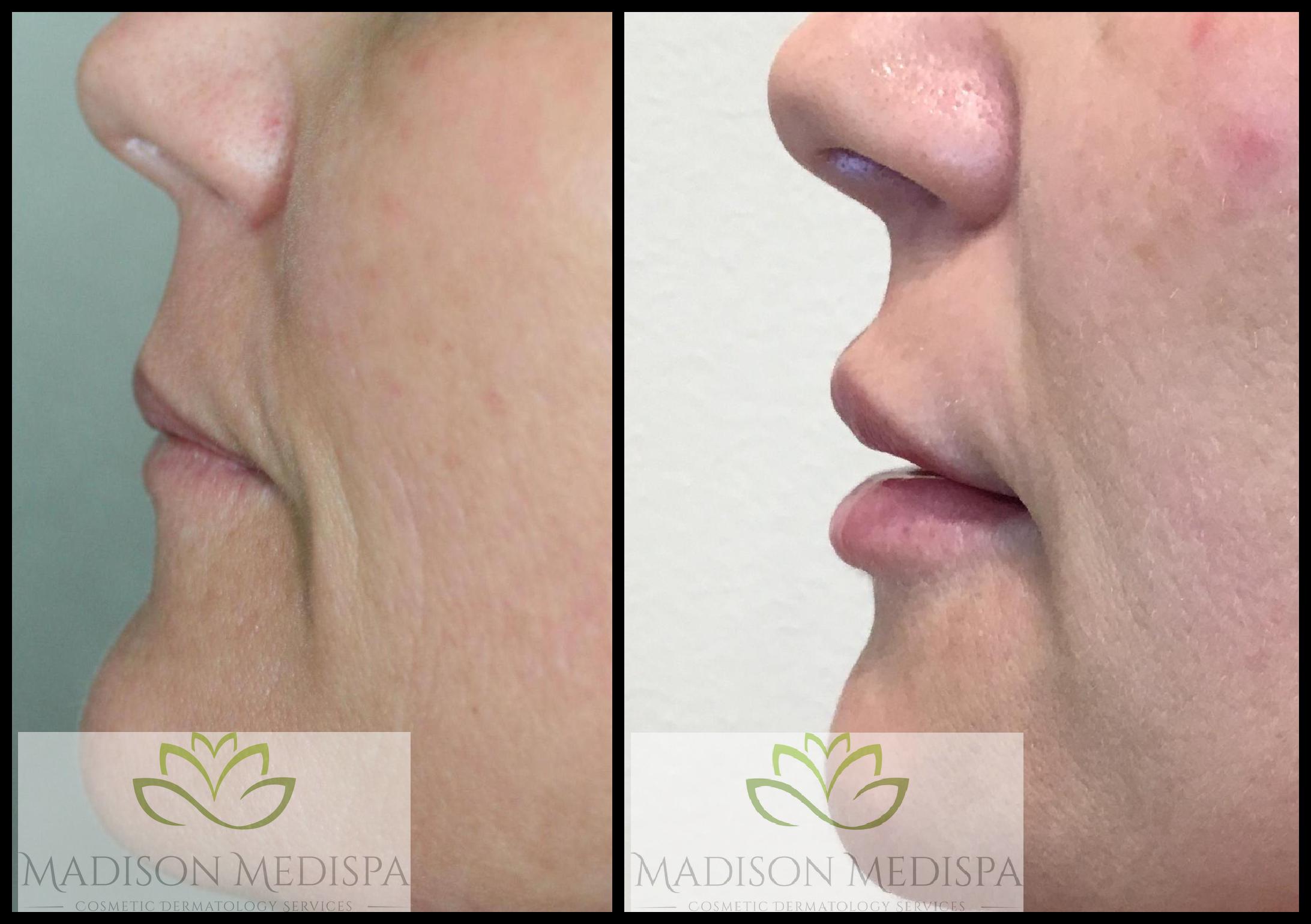 lips_face-procedures