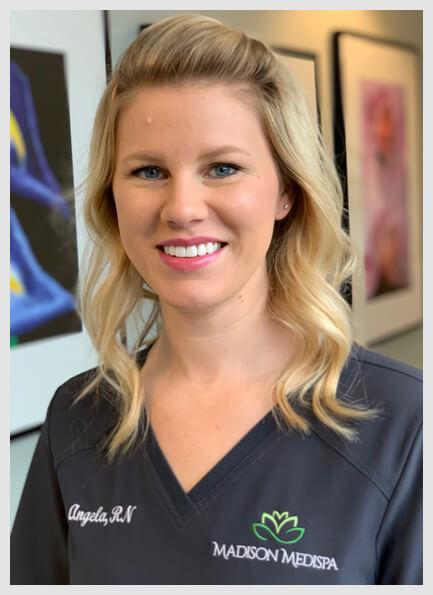 Angela Trawinski, RN, BSN | Certified Nurse Injector